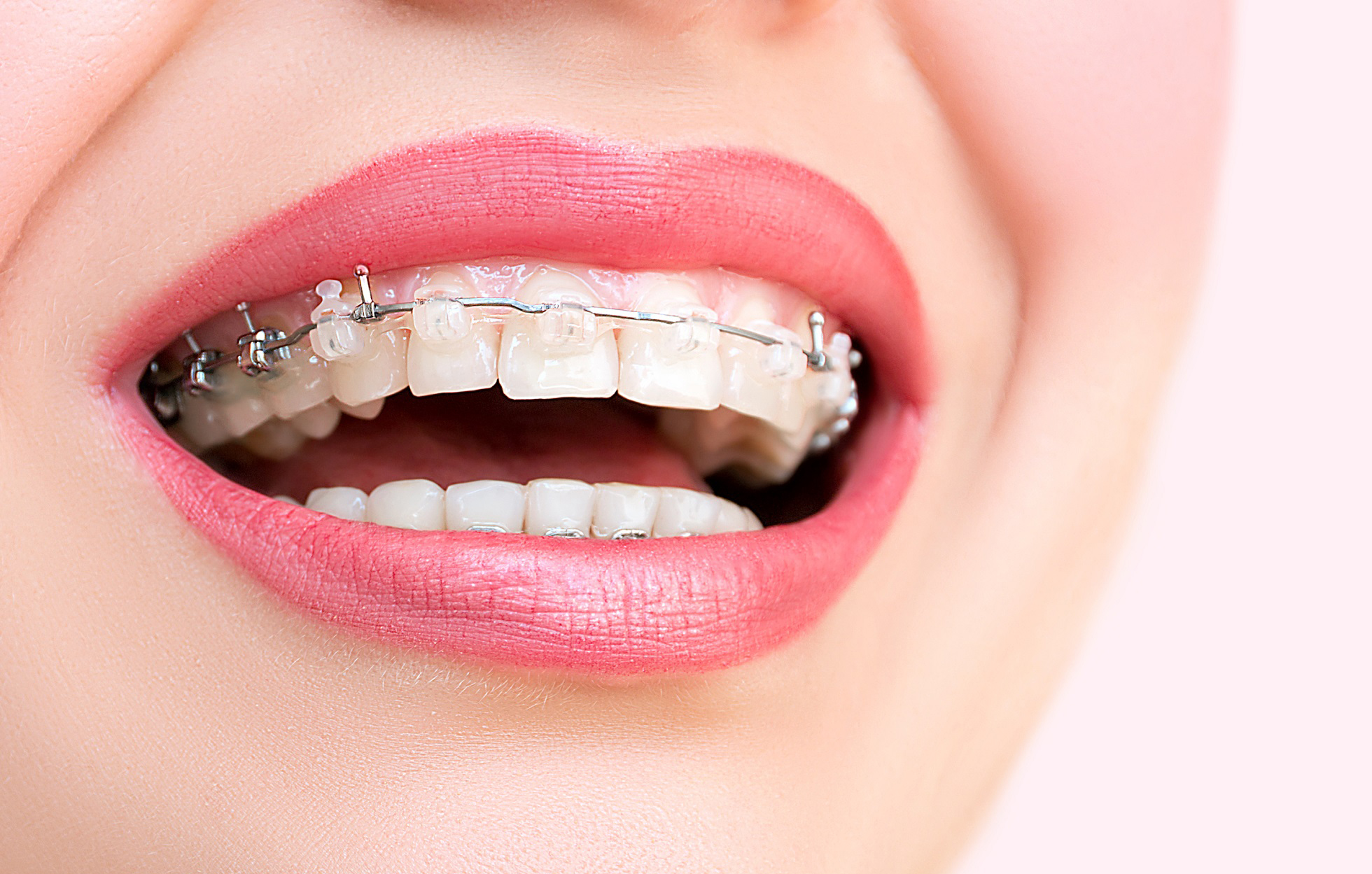 Orthodontist Dubai