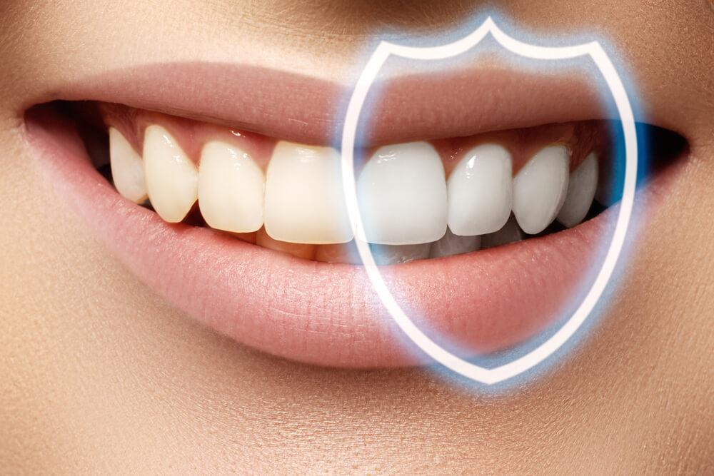 Best Tooth Whitening Dubai