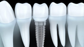 Cosmetic Dentist Dubai