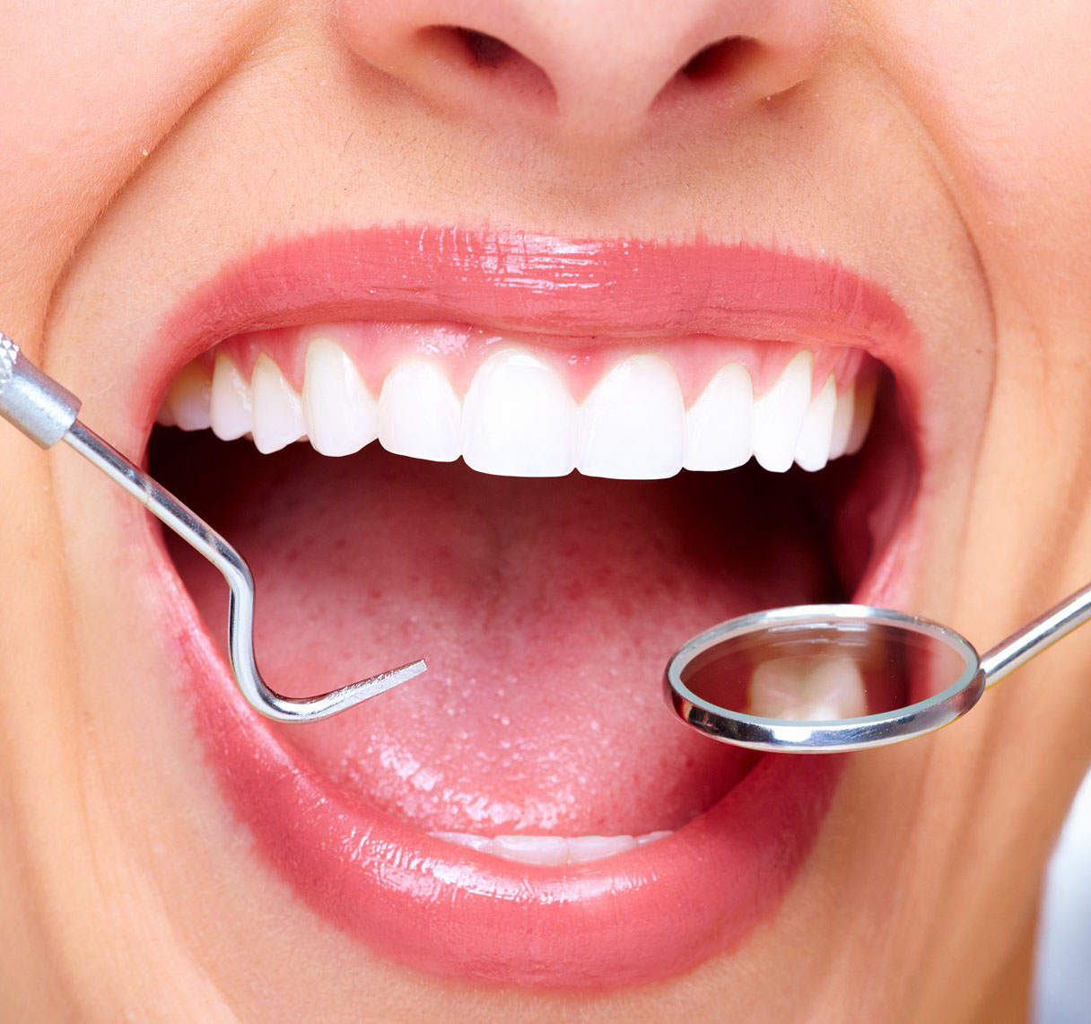 Dental Implants Cost in Dubai