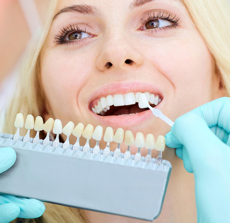 Total Dental Care Dubai