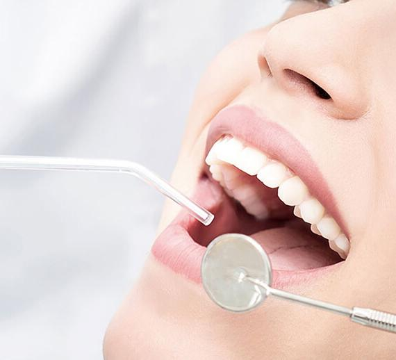 Dental fillings Dubai