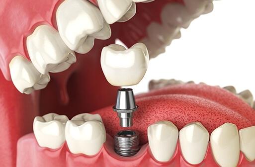 Same Day Dental Implants | Dental Implants Dubai