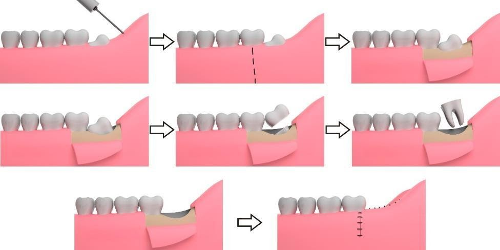 The Process of Widsdom tooth Removal